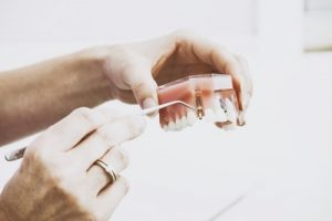 98 300x200 - The Pros and Cons of Dental Implants Adelaide
